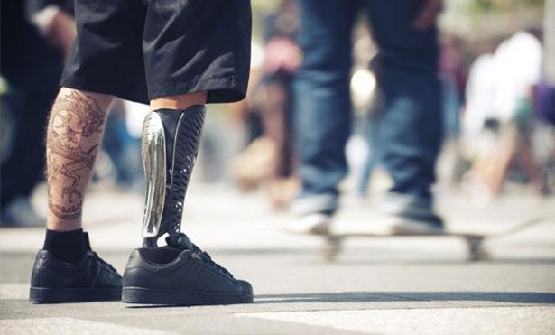 3D-Printing-Medical-Prosthetics
